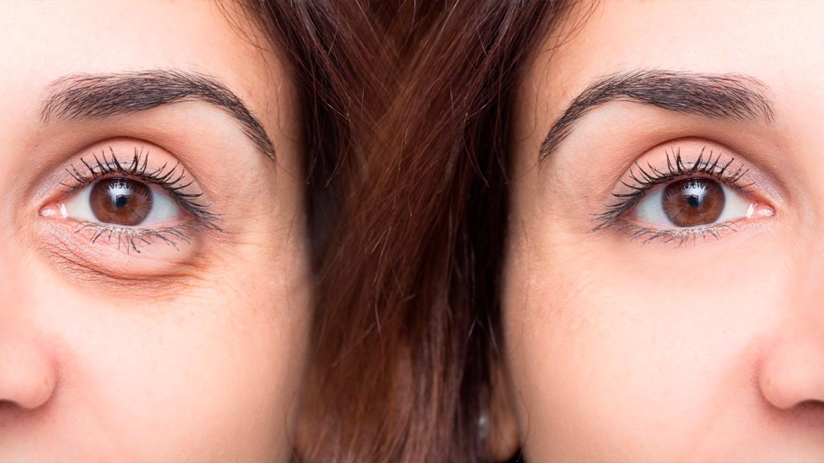 É possível tratar olheiras com preenchimento? - CDCC