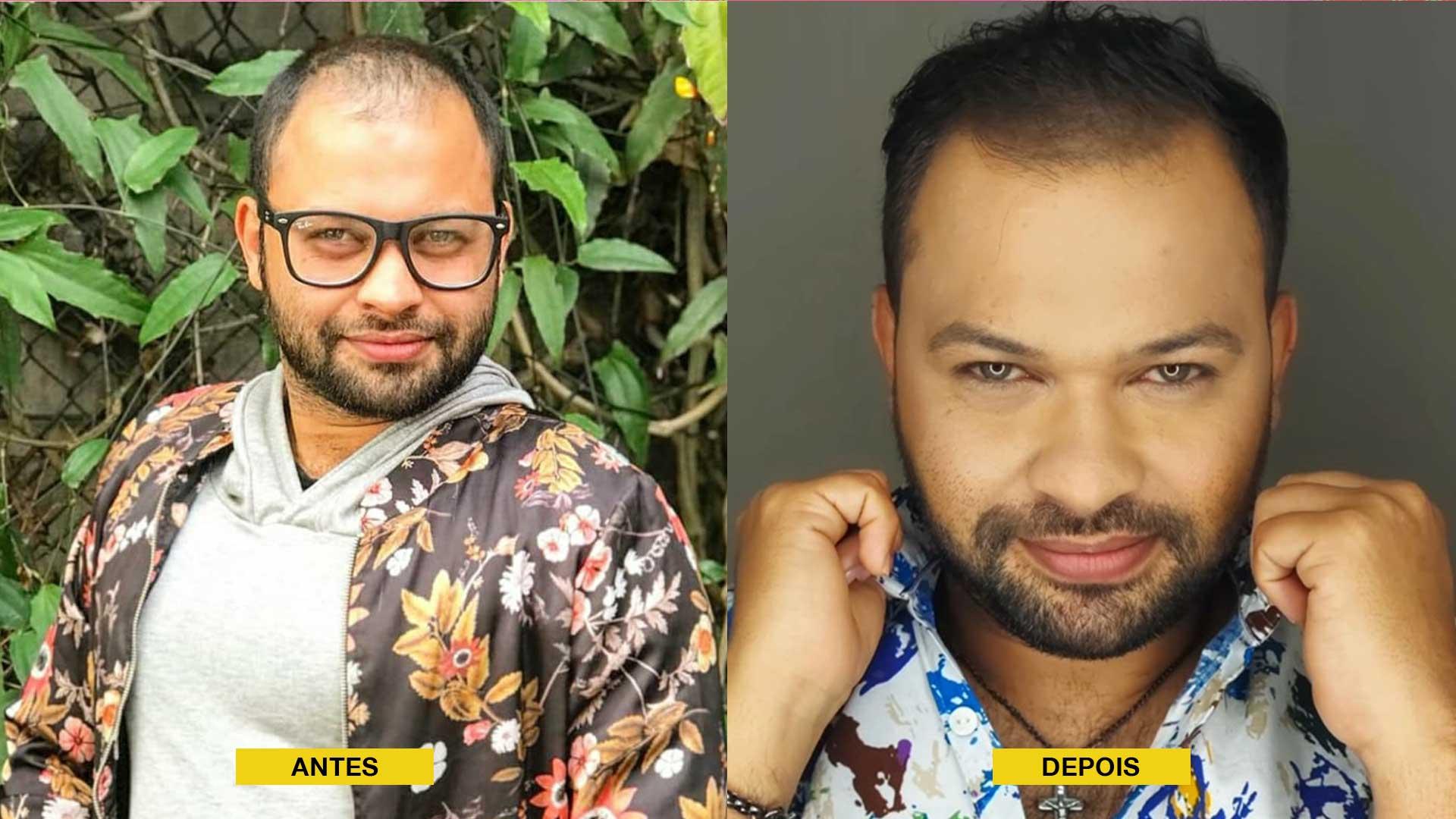 Antes e depois do tratamento. Foto: Divulgação