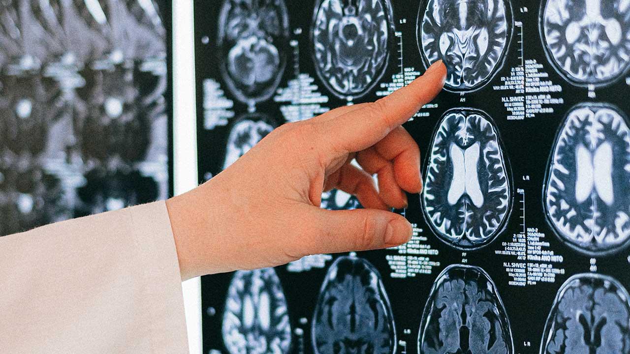 saúde e performance cerebral
