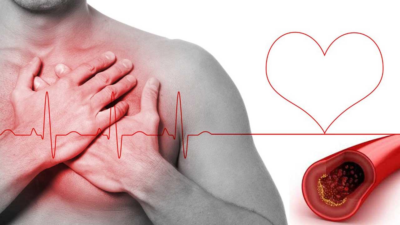 Síntese do colesterol: O que é?